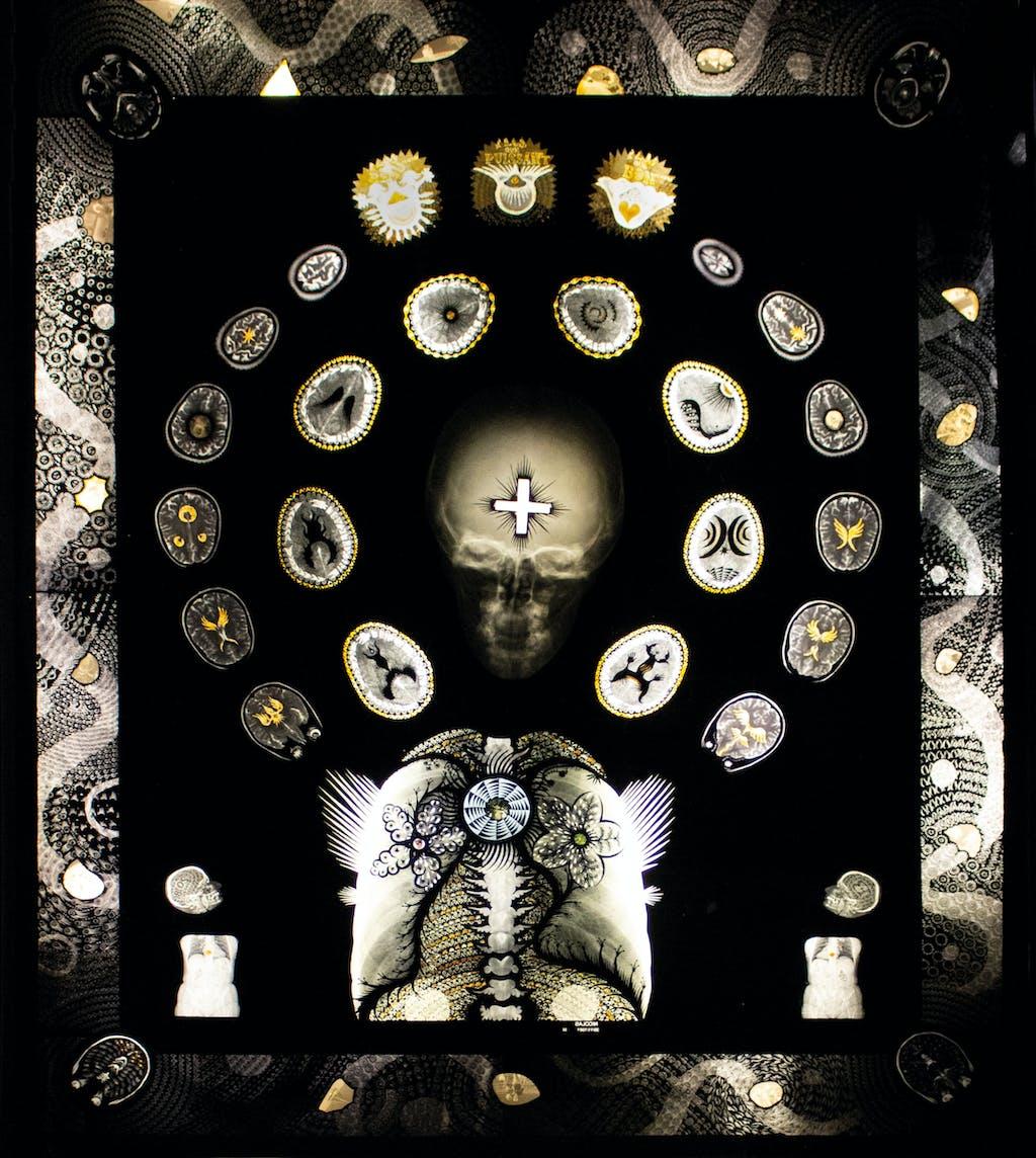 nicolas, en recherche de déification depuis 10 ans, 2018. encre de chine, collages et négatifs photographiques sur radiographies médicales assemblées et agrafées, 91.5 x 77.5 cm. - © christian berst art brut, christian berst — art brut